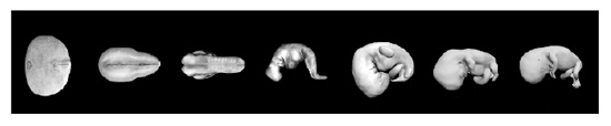 Stages of development of a fetus